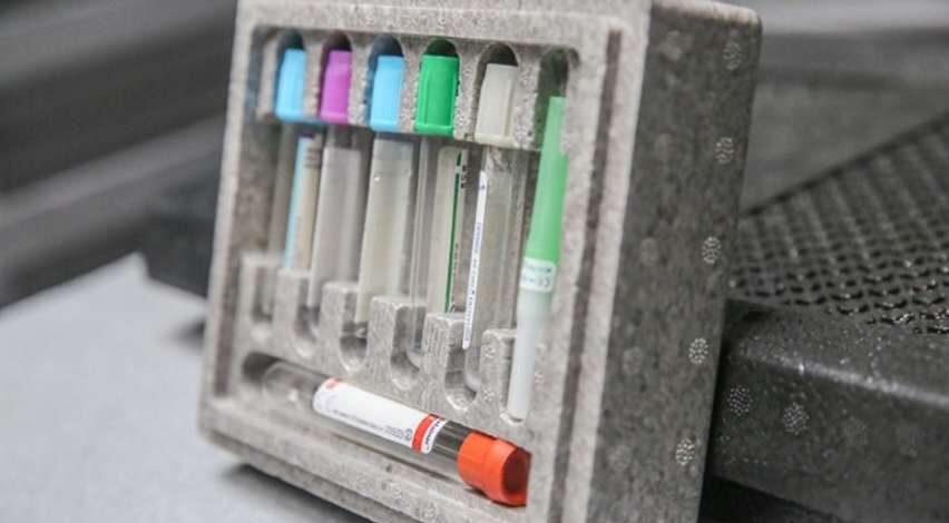 Opakowania farmaceutyczne ze styropianu